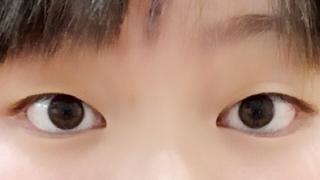 黒目が小さい