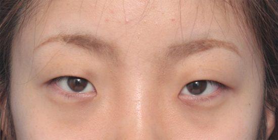 目の横幅 狭い
