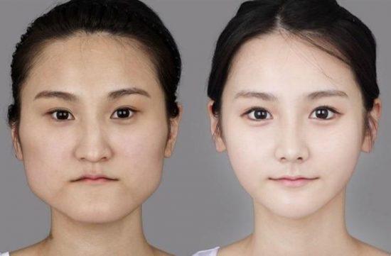 韓国 整形 芸能人