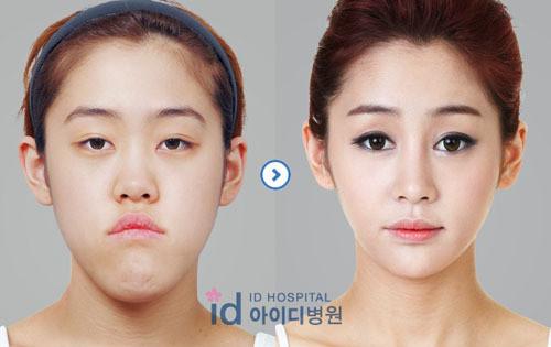 「整形 韓国」の画像検索結果